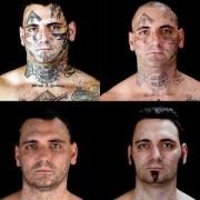 Μετανιωμένος ρατσιστής αφαιρεί όλα τα ναζιστικά τατουάζ